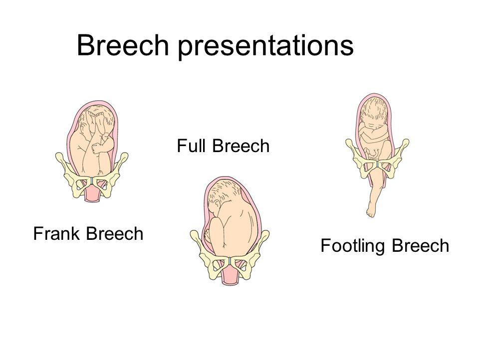 Breech presentations Frank Breech Full Breech Footling Breech