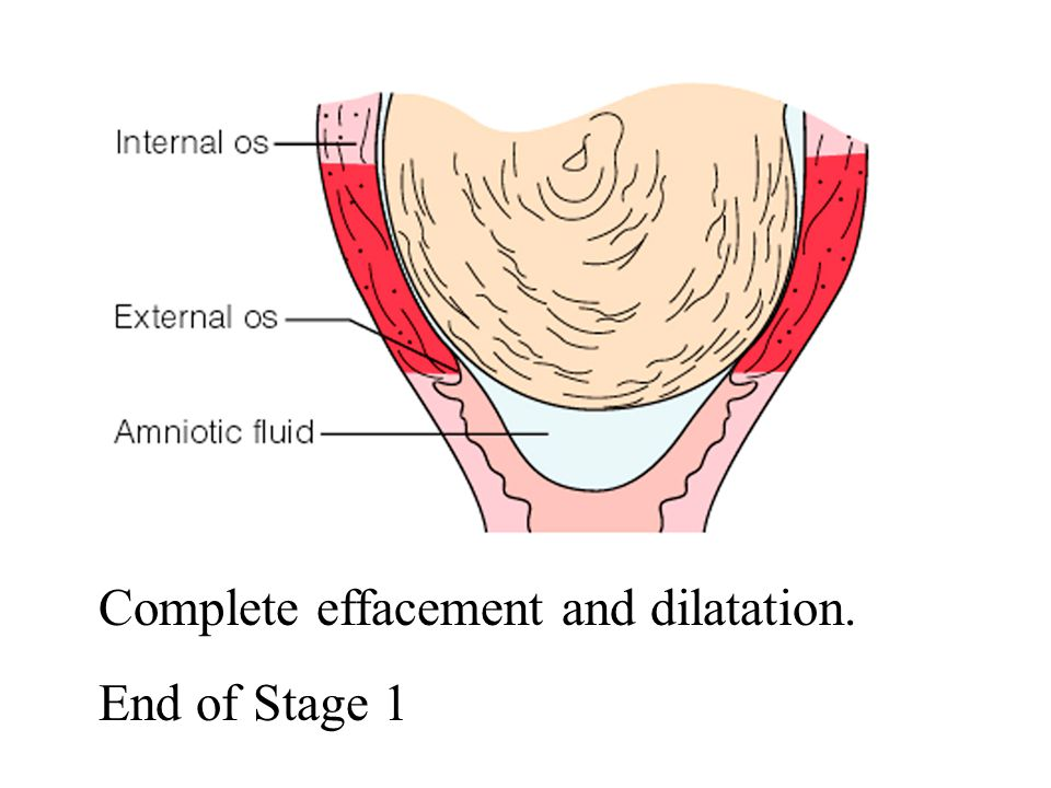 Complete effacement and dilatation. End of Stage 1