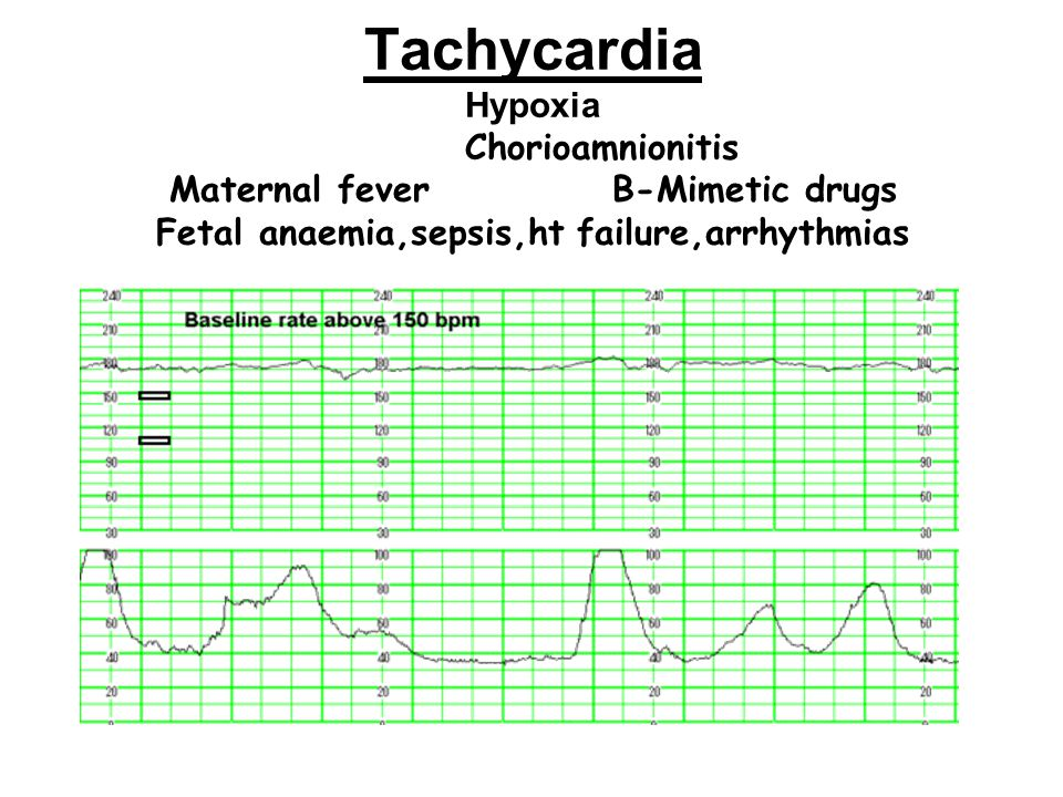Tachycardia Hypoxia Chorioamnionitis Maternal fever B-Mimetic drugs Fetal anaemia,sepsis,ht failure,arrhythmias