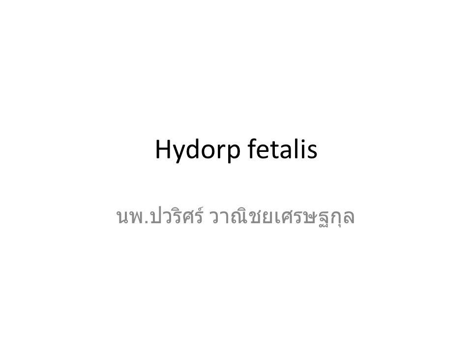Hydorp fetalis นพ. ปวริศร์ วาณิชยเศรษฐกุล