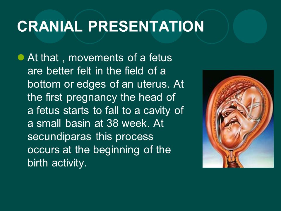 CRANIAL PRESENTATION At that, movements of a fetus are better felt in the field of a bottom or edges of an uterus.
