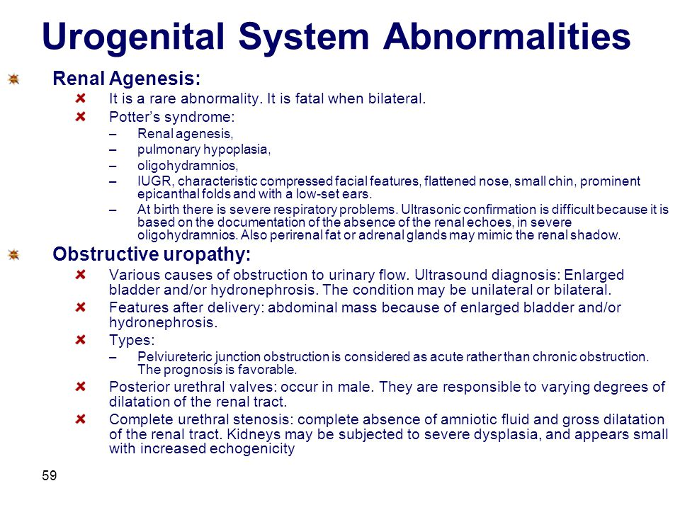 59 Urogenital System Abnormalities Renal Agenesis: It is a rare abnormality. It is fatal when bilateral. Potter's syndrome: –Renal agenesis, –pulmonar