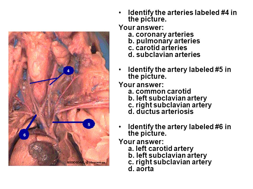 Identify the arteries labeled #4 in the picture.Your answer: a.