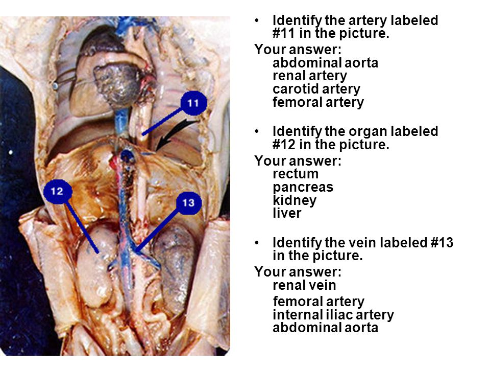Identify the artery labeled #11 in the picture.
