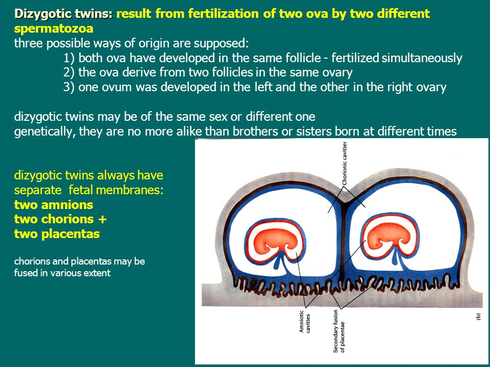 Monozygotic twins are always of the same sex because result from fertilization of one ovum they are genetically identical and very similar in physical appearance an arrangement of fetal membranes in these twins depends upon the twinning time twinning may occur in:   immediately after the first mitosis of zygote - twinning on two-cell stage (the zona pellucida is precociously dissolved, blastomeres then loose close contact and may develop independently each other each fetus has proper fetal membranes (separate)