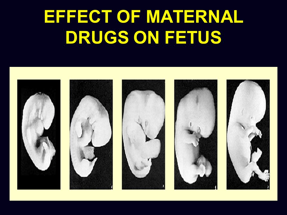 Drug use in pregnancy Effects of toxic drugs malformation growth retardation fetal death functional defects in newborn premature birth