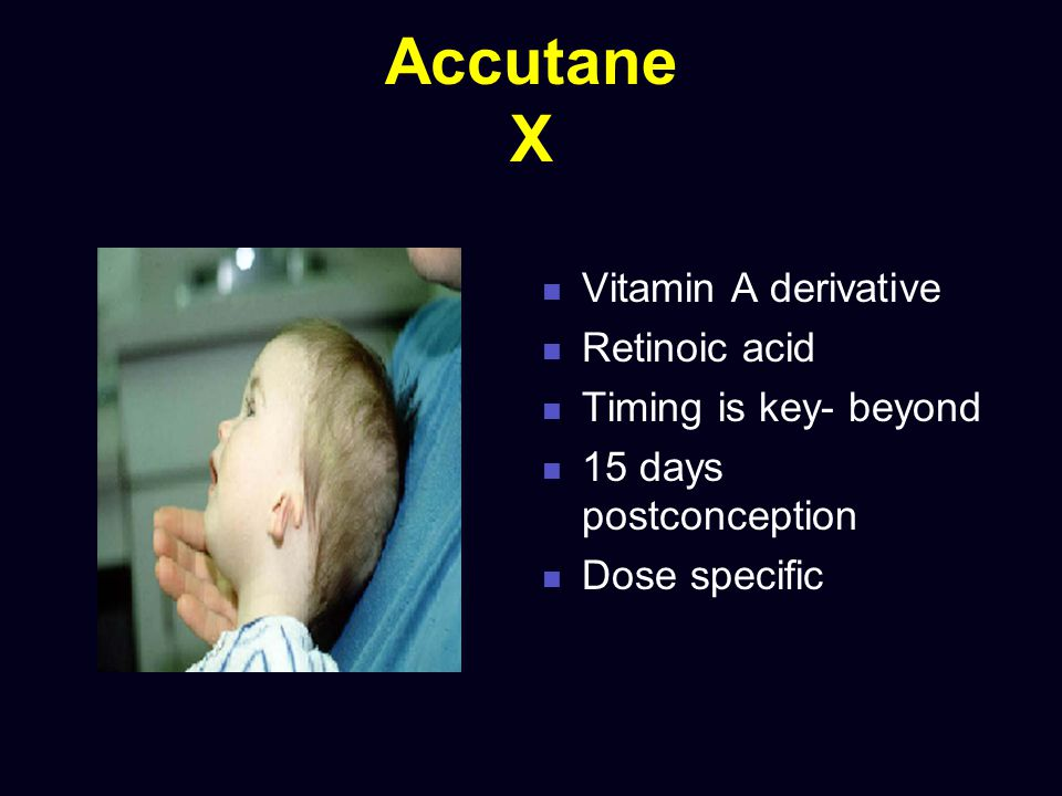 Accutane X Vitamin A derivative Retinoic acid Timing is key- beyond 15 days postconception Dose specific