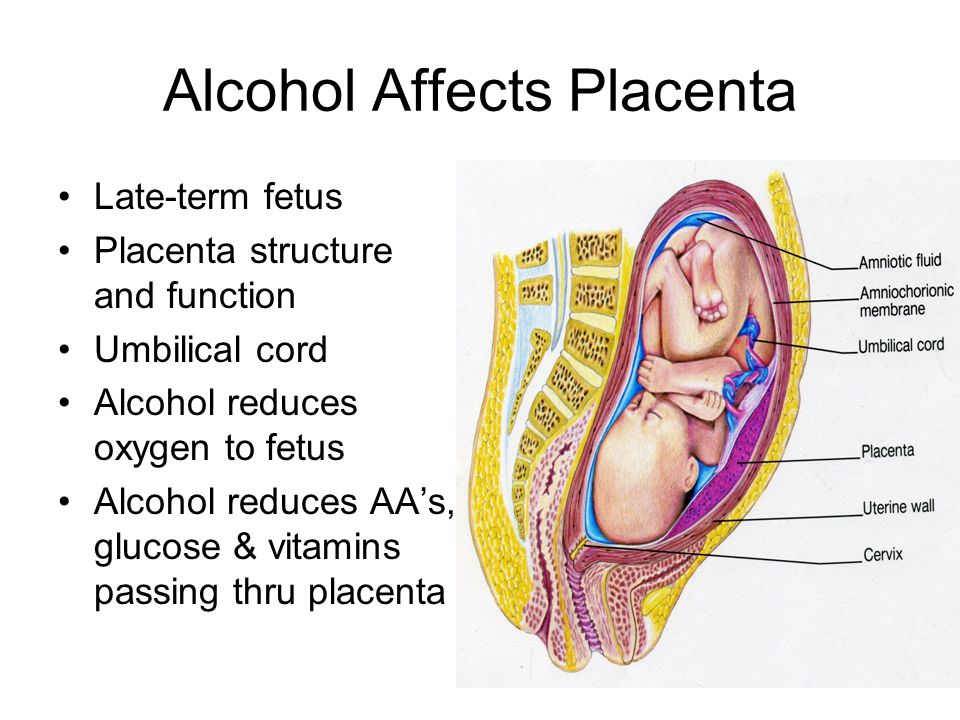 Alcohol Affects Placenta Late-term fetus Placenta structure and function Umbilical cord Alcohol reduces oxygen to fetus Alcohol reduces AA's, glucose
