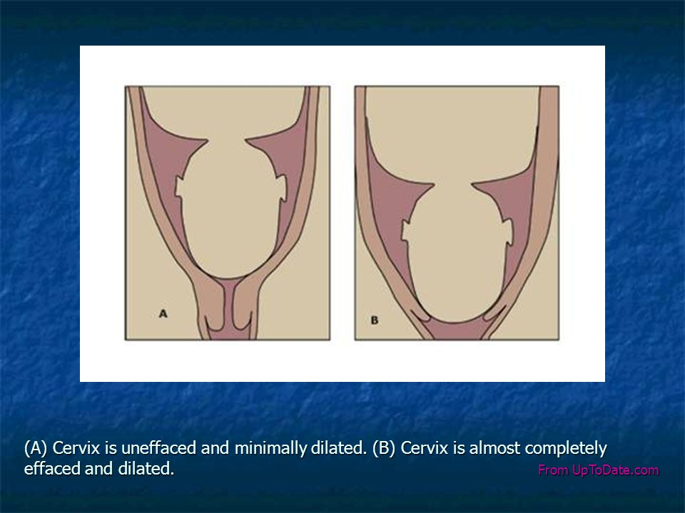 (A) Cervix is uneffaced and minimally dilated. (B) Cervix is almost completely effaced and dilated. From UpToDate.com