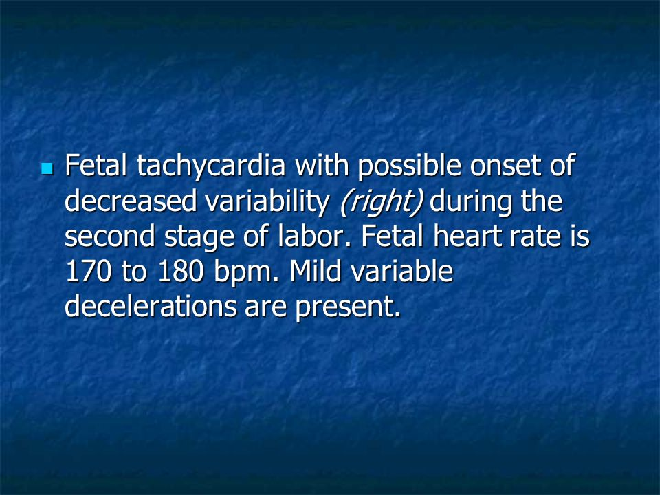 Fetal tachycardia with possible onset of decreased variability (right) during the second stage of labor. Fetal heart rate is 170 to 180 bpm. Mild vari