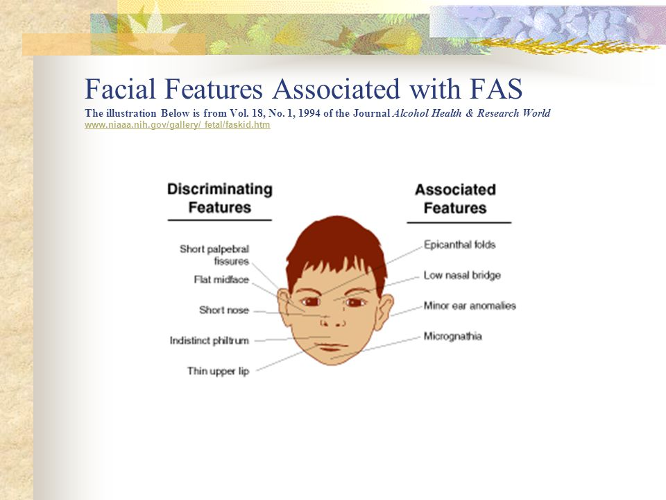 Facial Features Associated with FAS The illustration Below is from Vol.
