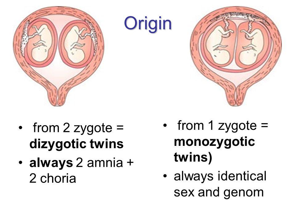 Origin from 2 zygote = dizygotic twins always 2 amnia + 2 choria from 1 zygote = monozygotic twins) always identical sex and genom