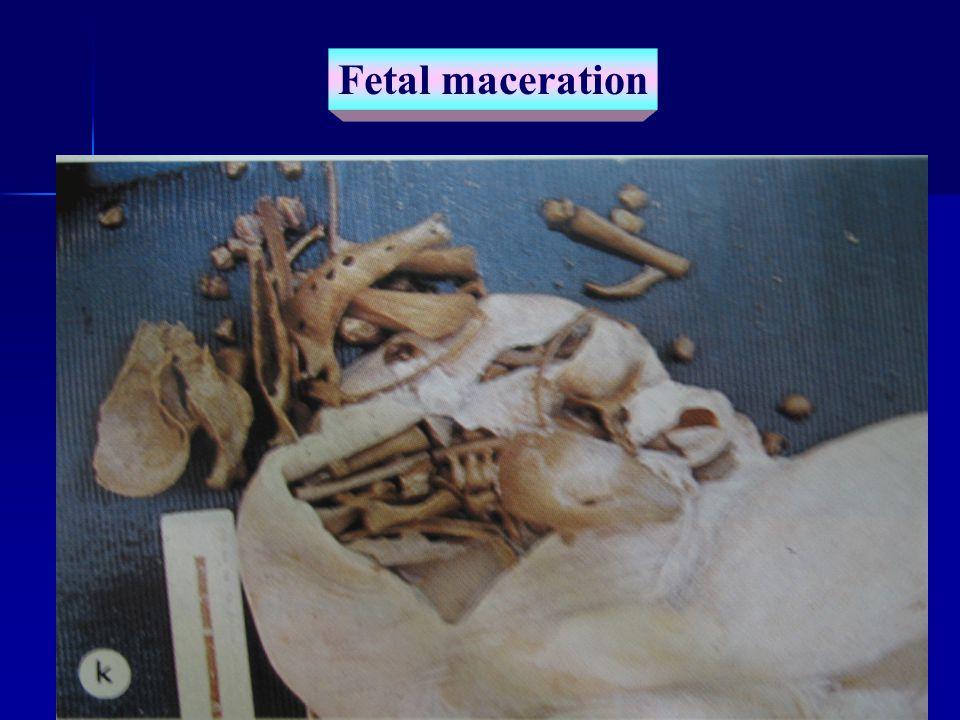 Fetal maceration