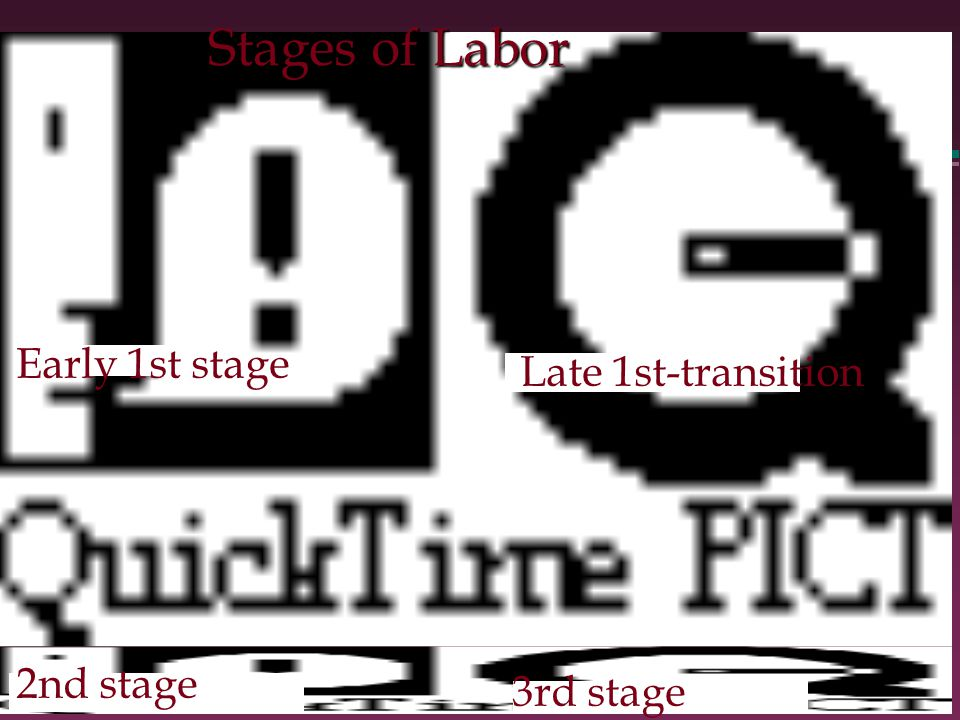 Stages of Labor Early 1st stage Late 1st-transition 2nd stage 3rd stage
