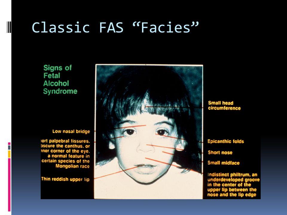 Classic FAS Facies