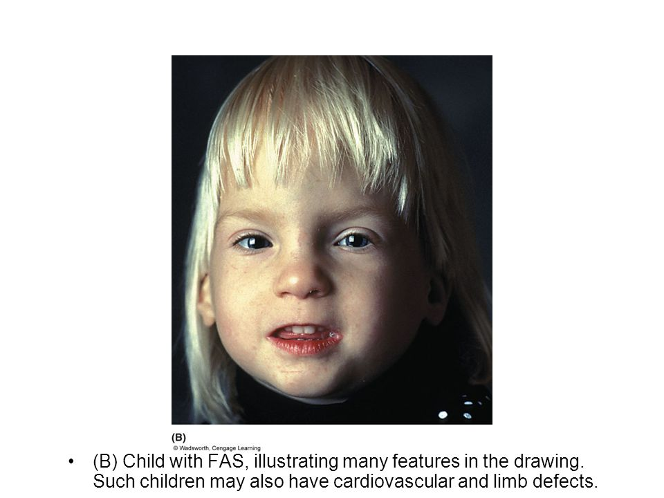(B) Child with FAS, illustrating many features in the drawing. Such children may also have cardiovascular and limb defects.