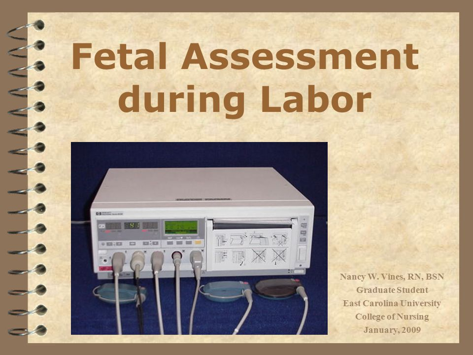 4 Discuss the various types of fetal monitoring 4 Demonstrate application of external fetal monitor (EFM) 4 Define terminology associated with fetal monitoring 4 Determine fetal heart rate (FHR) baseline 4 Identify common FHR patterns 4 Describe and differentiate among nursing interventions used for managing specific fetal heart rate patterns Objectives