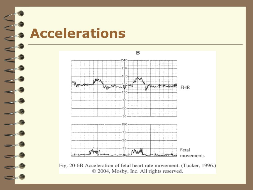 Accelerations