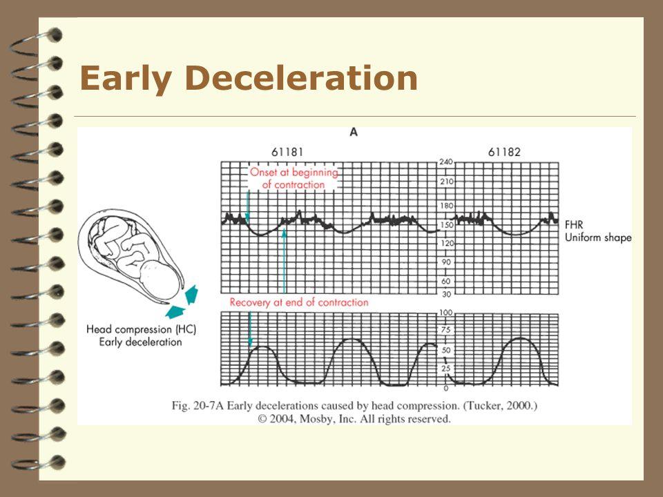 Early Deceleration