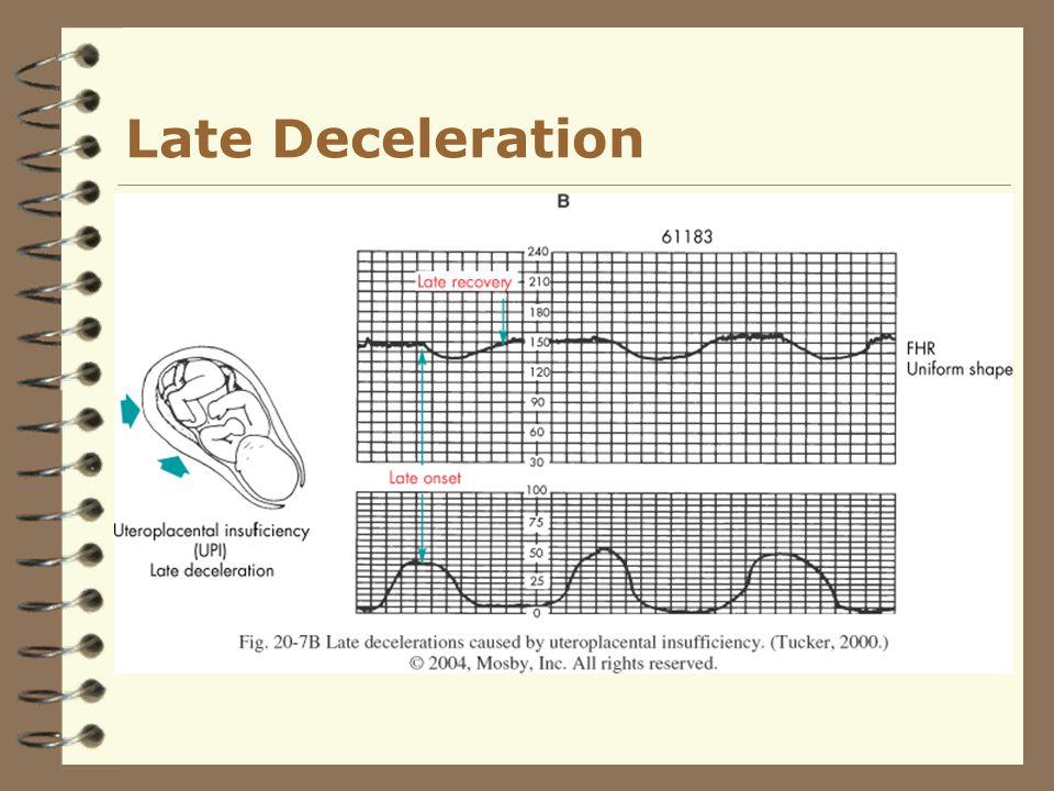 Late Deceleration
