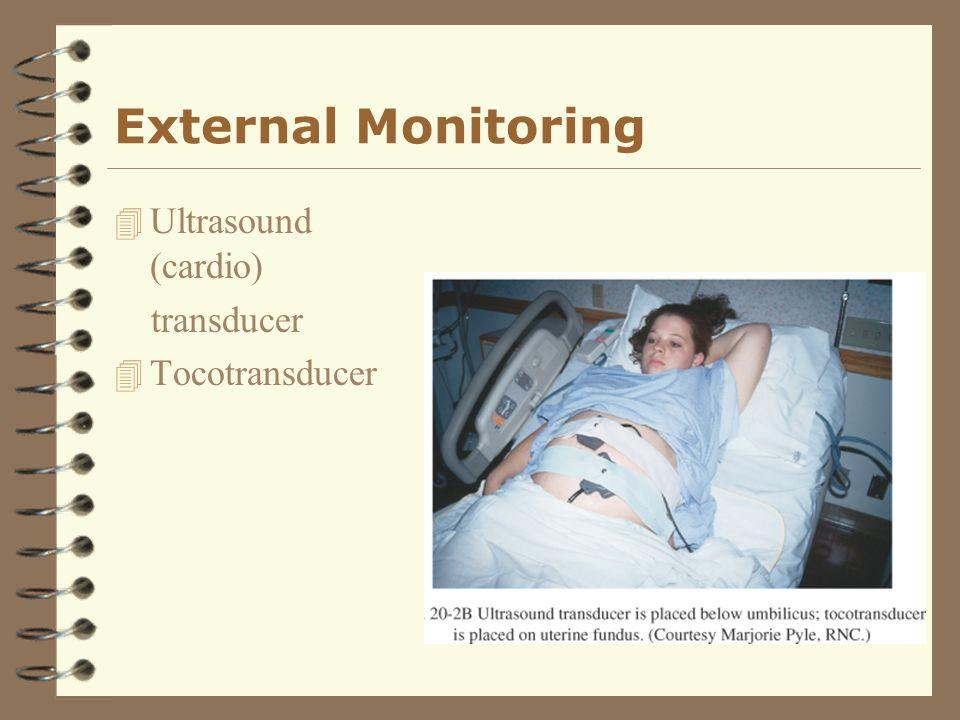 External Monitoring 4 Ultrasound (cardio) transducer 4 Tocotransducer
