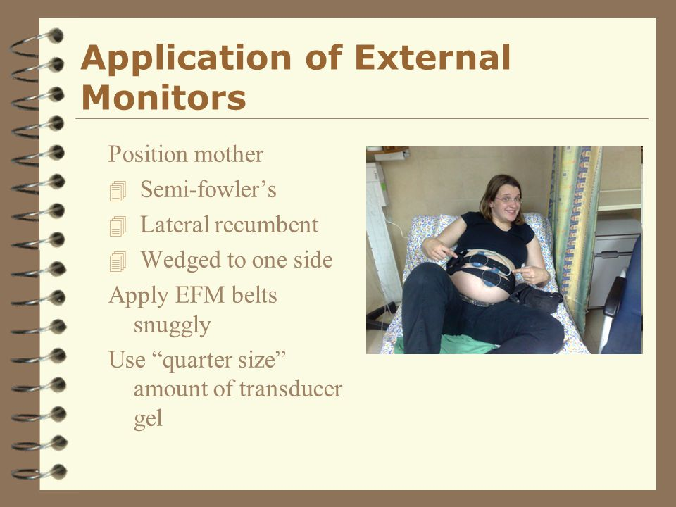 """Application of External Monitors Position mother 4 Semi-fowler's 4 Lateral recumbent 4 Wedged to one side Apply EFM belts snuggly Use """"quarter size"""" a"""