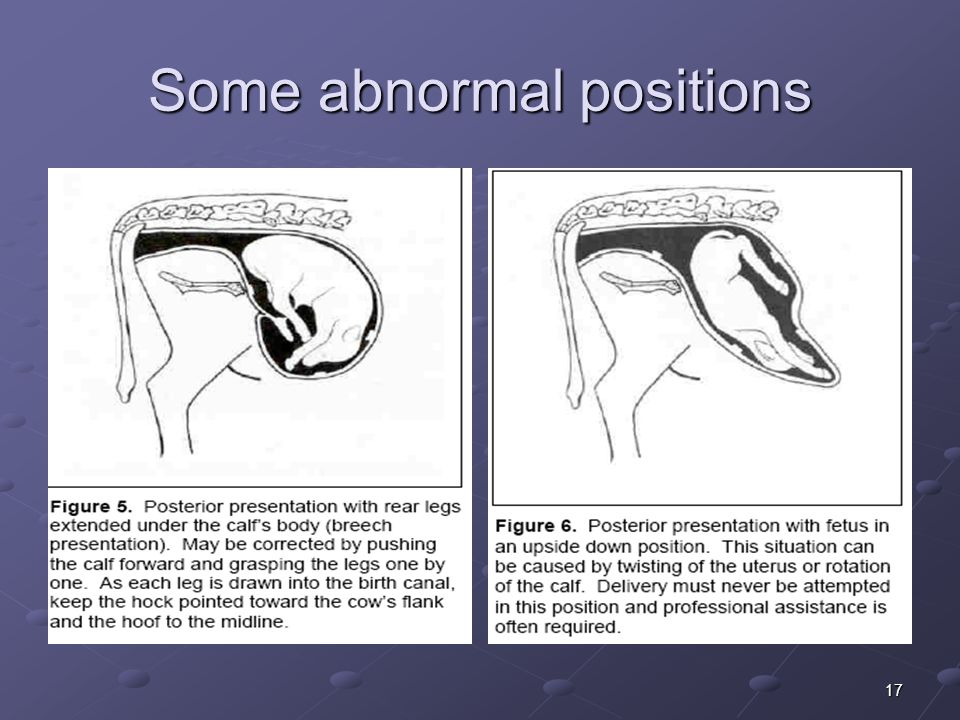 17 Some abnormal positions