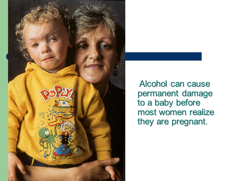 Alcohol can cause permanent damage to a baby before most women realize they are pregnant.
