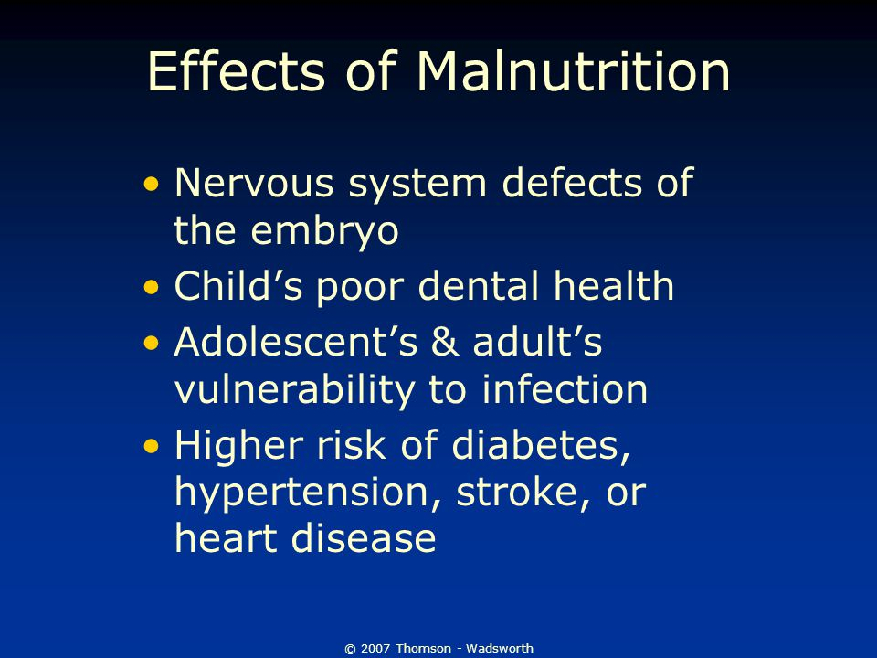 © 2007 Thomson - Wadsworth Effects of Malnutrition Nervous system defects of the embryo Child's poor dental health Adolescent's & adult's vulnerability to infection Higher risk of diabetes, hypertension, stroke, or heart disease