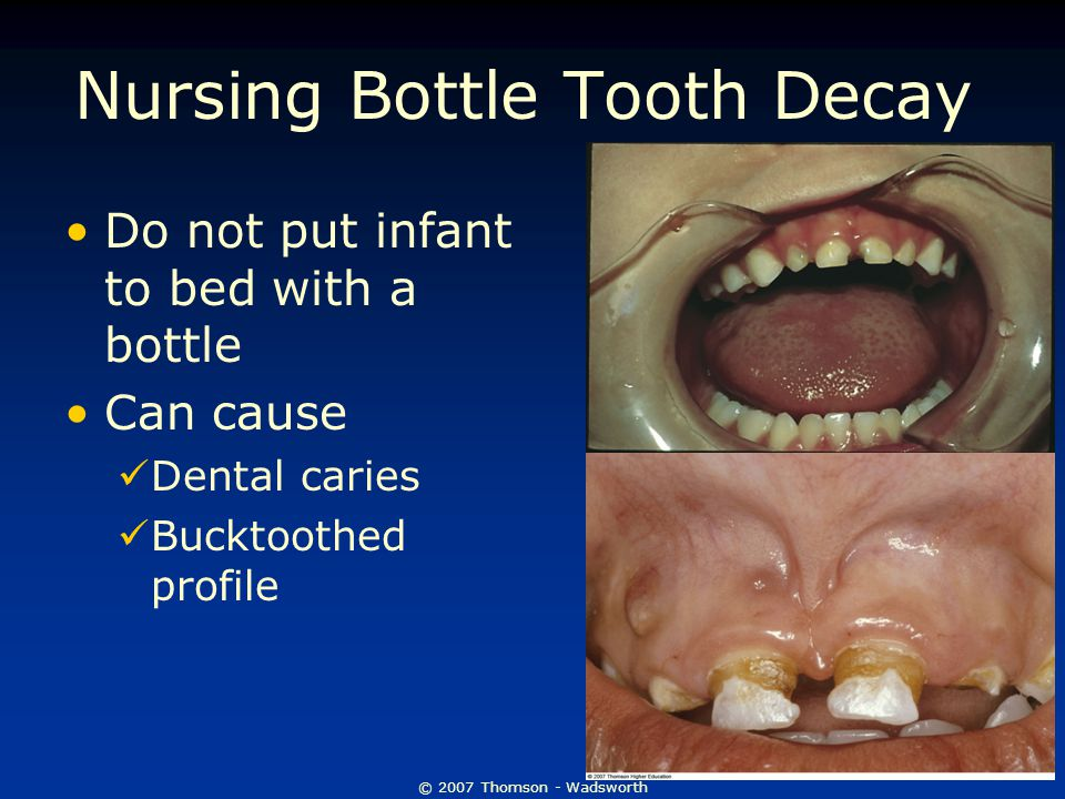 © 2007 Thomson - Wadsworth Nursing Bottle Tooth Decay Do not put infant to bed with a bottle Can cause Dental caries Bucktoothed profile