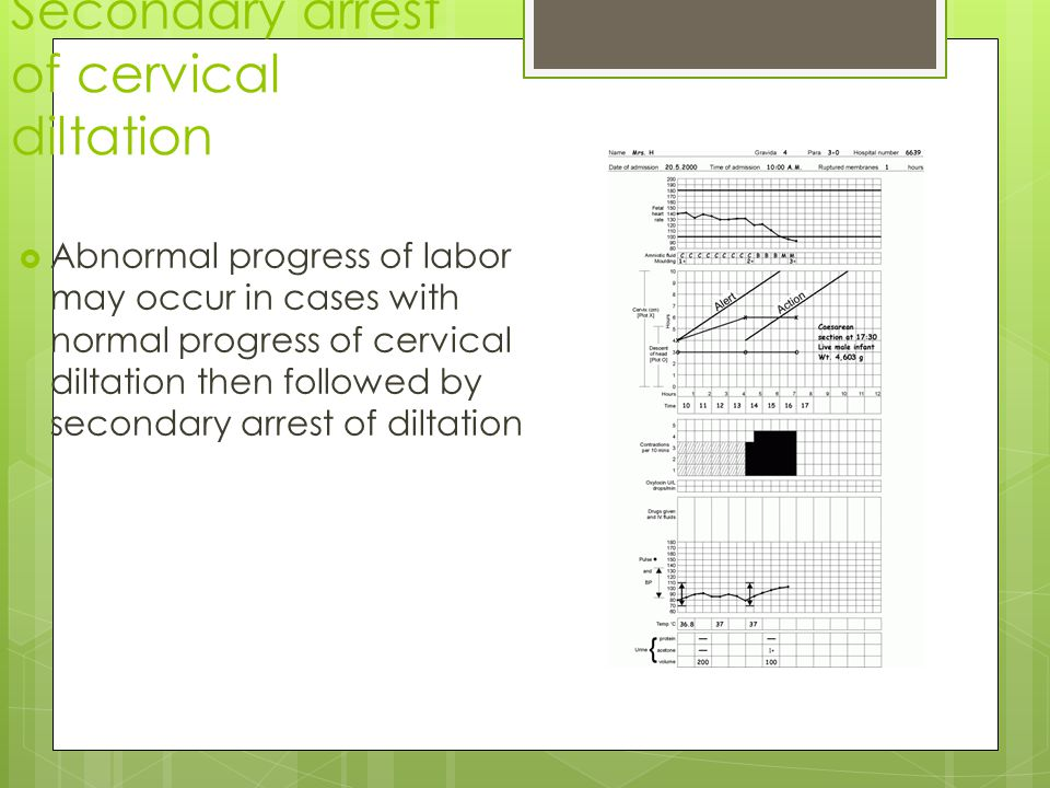 Secondary arrest of cervical diltation  Abnormal progress of labor may occur in cases with normal progress of cervical diltation then followed by secondary arrest of diltation