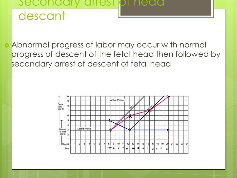 Secondary arrest of head descant  Abnormal progress of labor may occur with normal progress of descent of the fetal head then followed by secondary arrest of descent of fetal head