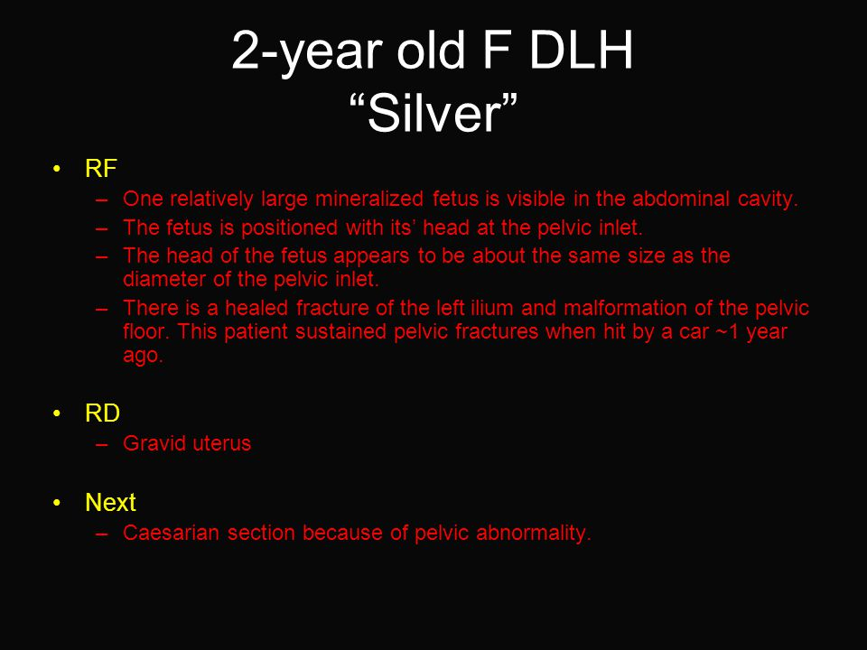 """2-year old F DLH """"Silver"""" RF –One relatively large mineralized fetus is visible in the abdominal cavity. –The fetus is positioned with its' head at th"""