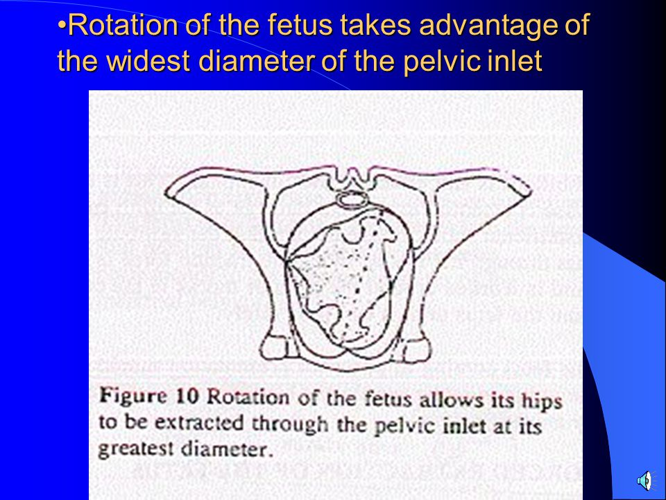 Rotation of the fetus takes advantage of the widest diameter of the pelvic inletRotation of the fetus takes advantage of the widest diameter of the pe