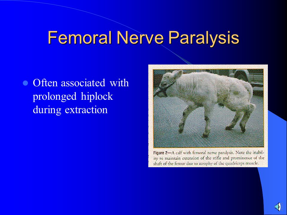 Femoral Nerve Paralysis Often associated with prolonged hiplock during extraction