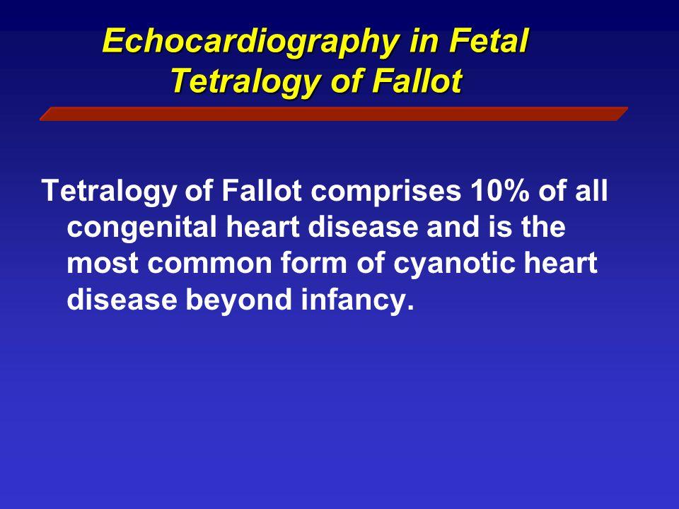 Echocardiography in Fetal Tetralogy of Fallot-Absent valve