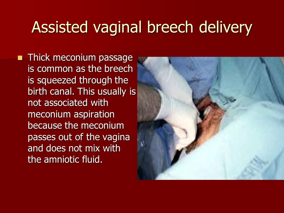 Assisted vaginal breech delivery Thick meconium passage is common as the breech is squeezed through the birth canal. This usually is not associated wi