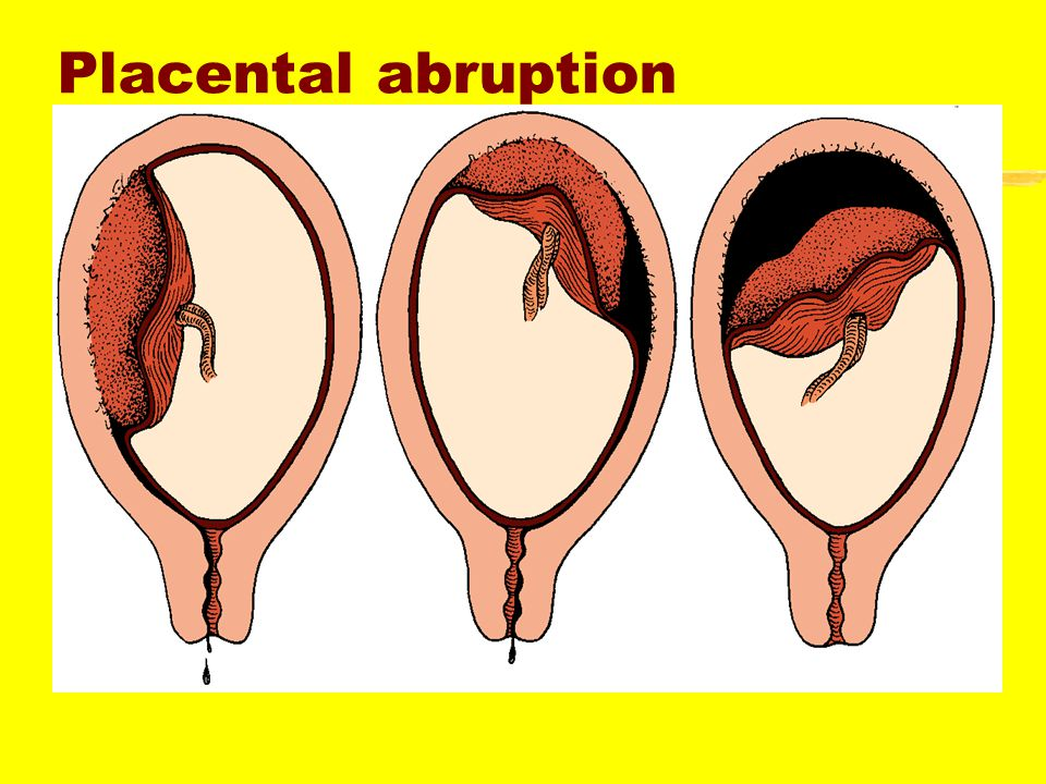Placental Abruption zIncidence--10% of all deliveries zTypes ypartial ycomplete yoccult (concealed,retroplacental ) zRisk factors yprior history of abruption ymaternal hypertension ysmoking or cocaine use y  maternal age ymultiparity ytrauma