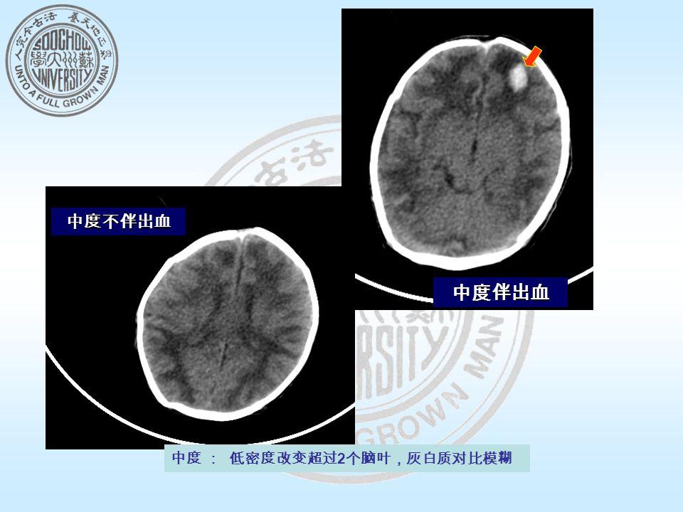中度 : 低密度改变超过 2 个脑叶,灰白质对比模糊 中度不伴出血 中度伴出血