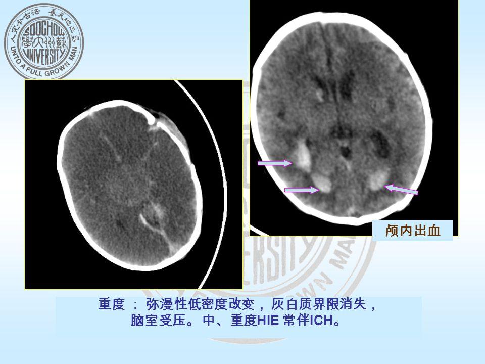 重度 : 弥漫性低密度改变, 灰白质界限消失, 脑室受压。 中、重度 HIE 常伴 ICH 。 颅内出血