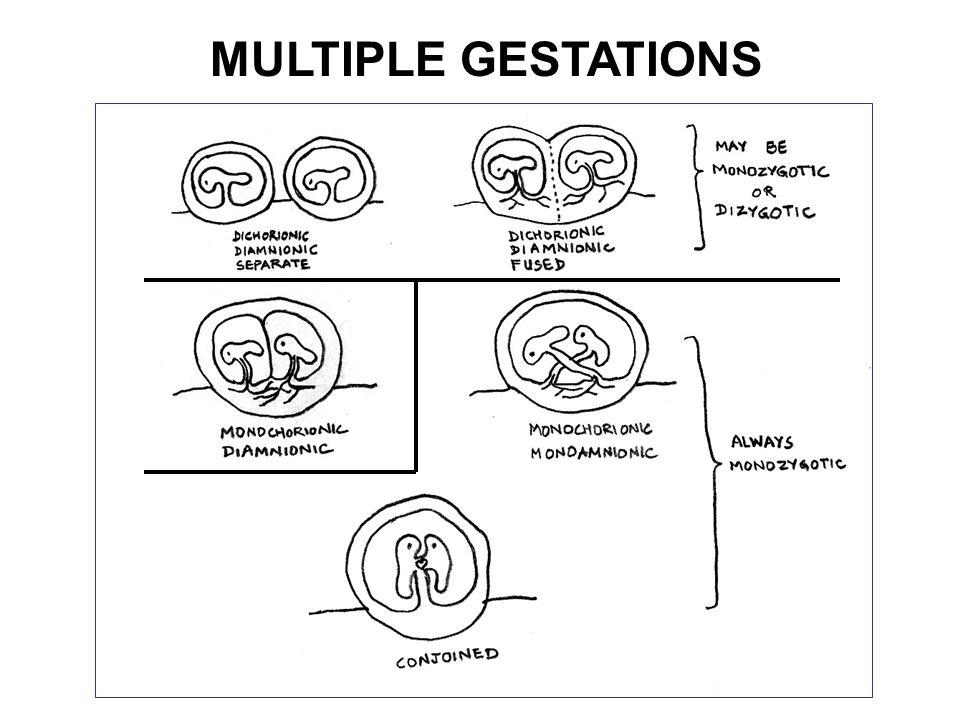 MULTIPLE GESTATIONS