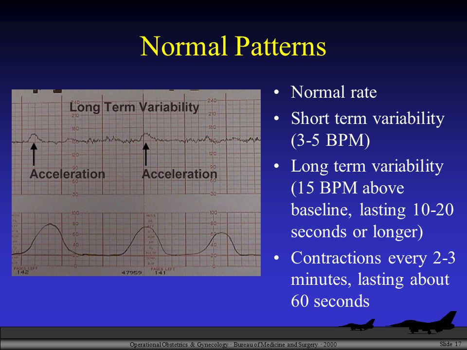 Operational Obstetrics & Gynecology · Bureau of Medicine and Surgery · 2000 Slide 17 Normal Patterns Normal rate Short term variability (3-5 BPM) Long