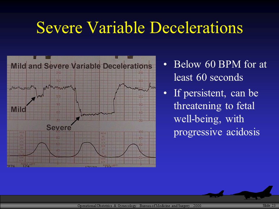 Operational Obstetrics & Gynecology · Bureau of Medicine and Surgery · 2000 Slide 23 Severe Variable Decelerations Below 60 BPM for at least 60 second