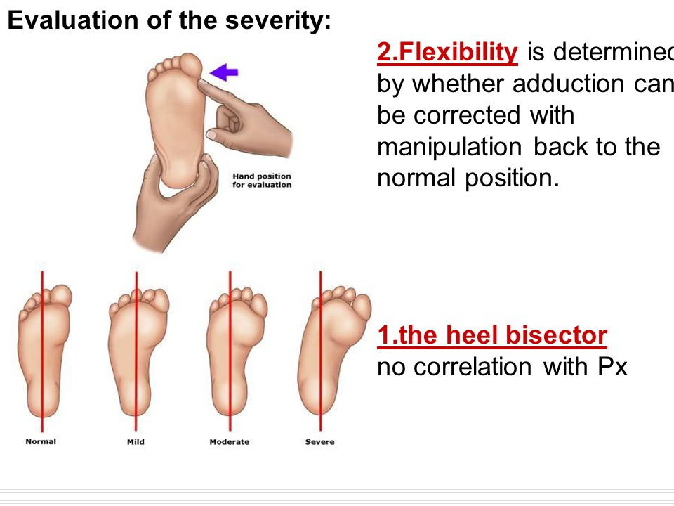  Two classification systems have been used to evaluate the severity of this condition (show figure 1) [8].show figure 18 Evaluation of the severity: 2.Flexibility is determined by whether adduction can be corrected with manipulation back to the normal position.