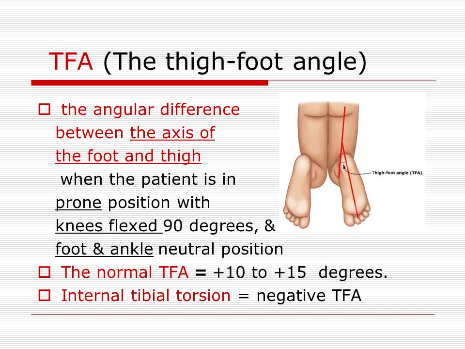 TFA (The thigh-foot angle)  the angular difference between the axis of the foot and thigh when the patient is in prone position with knees flexed 90 degrees, & foot & ankle neutral position  The normal TFA = +10 to +15 degrees.