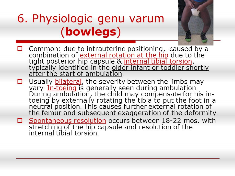 6. Physiologic genu varum (bowlegs)  Common: due to intrauterine positioning, caused by a combination of external rotation at the hip due to the tigh