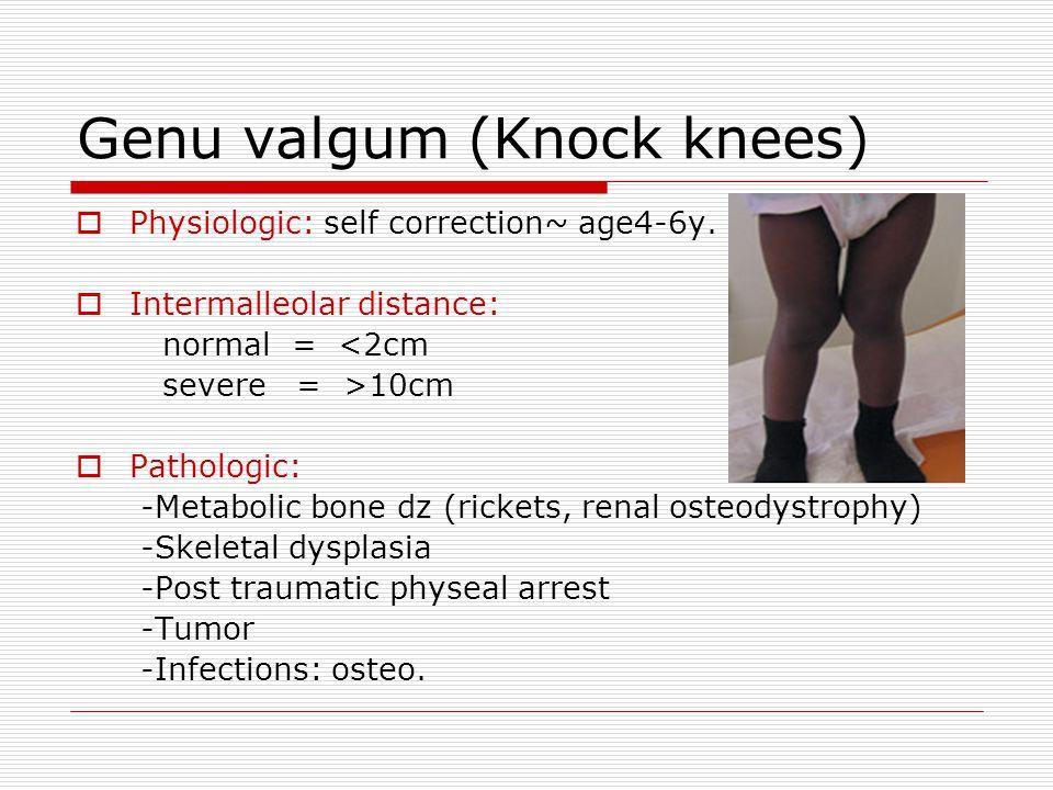 Genu valgum (Knock knees)  Physiologic: self correction~ age4-6y.  Intermalleolar distance: normal = <2cm severe = >10cm  Pathologic: -Metabolic bo