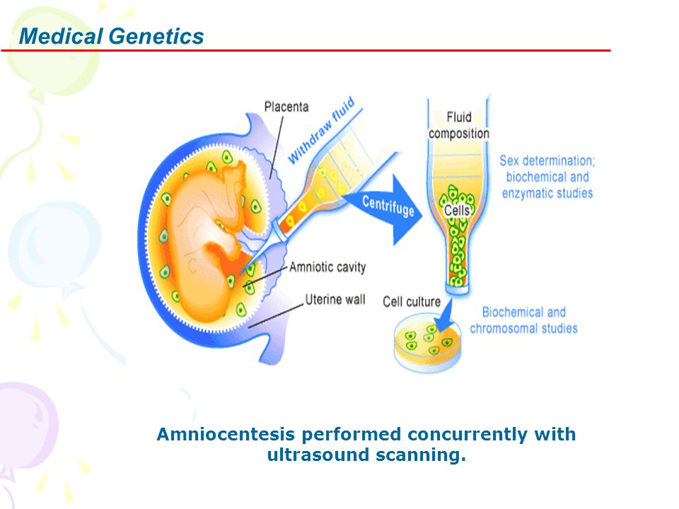 Medical Genetics Amniocentesis performed concurrently with ultrasound scanning.