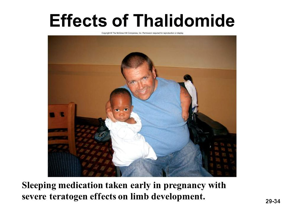 29-34 Effects of Thalidomide Sleeping medication taken early in pregnancy with severe teratogen effects on limb development.