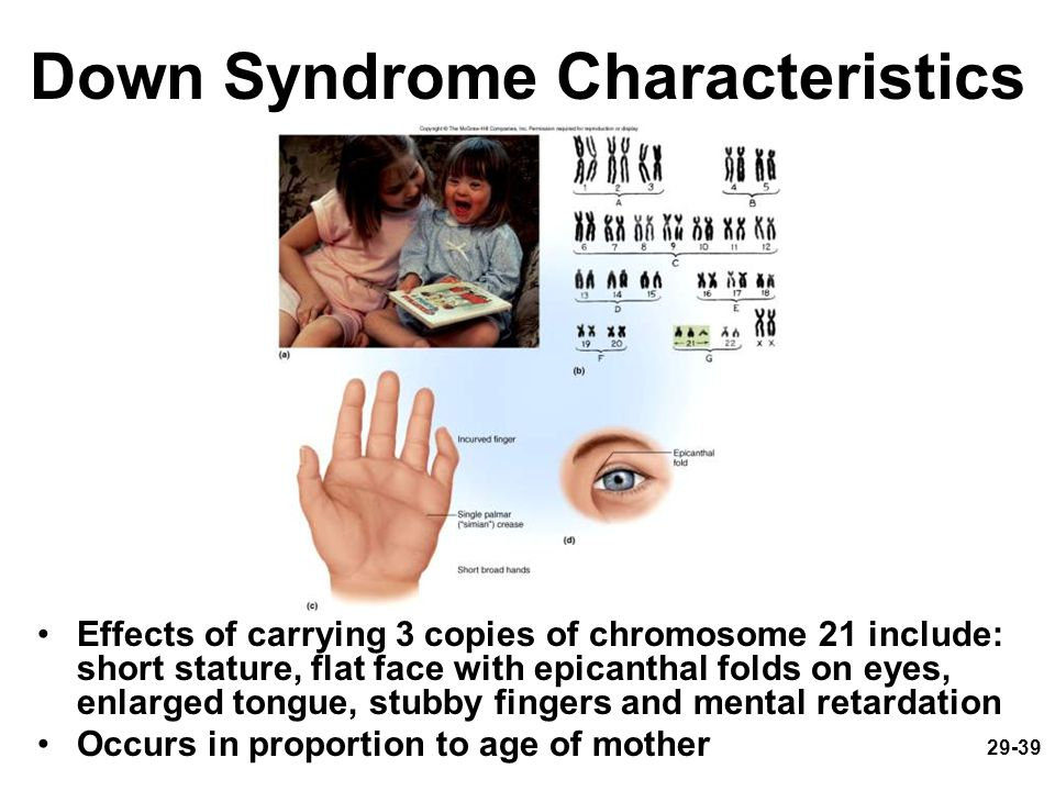 29-39 Down Syndrome Characteristics Effects of carrying 3 copies of chromosome 21 include: short stature, flat face with epicanthal folds on eyes, enl